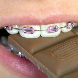 Alimente interzise! Nu le consumaţi dacă purtaţi aparat dentar