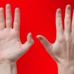 Amorțeala degetelor de la picioare poate anunța Sindromul Morton