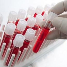 Cancerul poate fi depistat din timp cu ajutorul unor teste de sânge