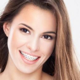 Zâmbiţi, vă rog! Aparatul dentar, eficient şi la adulţi