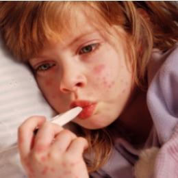 Ce este boala mână-gură-picior ?