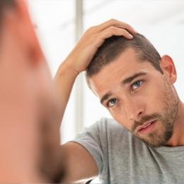 Vă cade părul? Care sunt cauzele ce duc la pierderea podoabei capilare