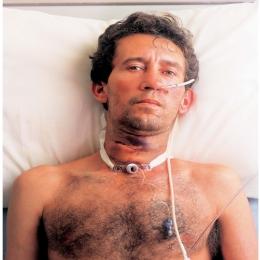 Cancerul de laringe, o boală care trebuie tratată din timp