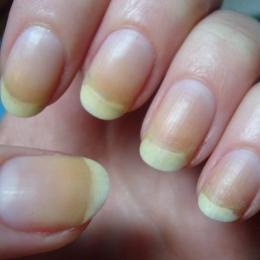 Ce spun unghiile despre sănătatea dumneavoastră
