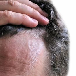 DERMATITA SEBOREICĂ, o boală sau simple eczeme?   Care sun cauzele, simptomele şi tratamentul