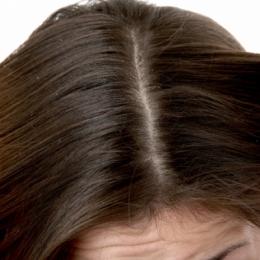 Cum puteţi scăpa uşor de dermatita seboreică