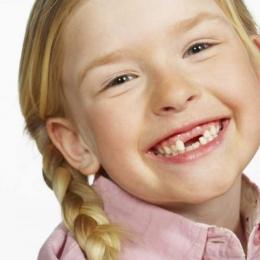Ce se întâmplă dacă dinții de lapte sunt cariați?
