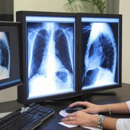 Durerea toracică, semn al bolilor de plămâni