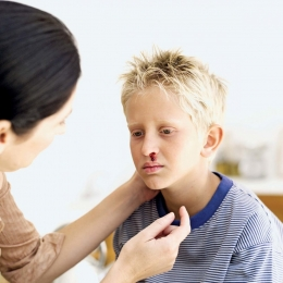 Sângerarea nazală la copii este foarte rar motiv de panică