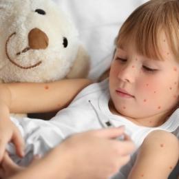 Umflarea ganglionilor apare, cel mai des, în contextul bolilor copilăriei
