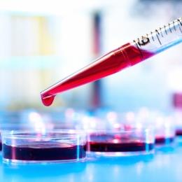 Cum poate fi prevenită hepatita virală E