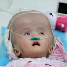 Hidrocefalia sau cum ne poate distruge o boală creierul