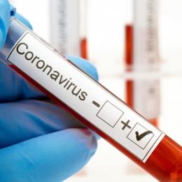 La ce ajută testele de detecție ale anticorpilor împotriva SARS-CoV-2