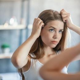 Aveți mătreață? Schimbați-vă, mai întâi, șamponul!