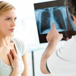 Tratamentul astmului bronşic,